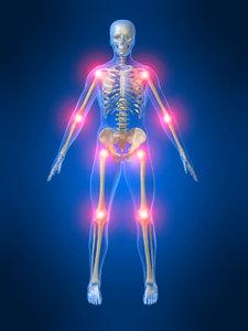 Slikovni rezultat za anti inflammatory