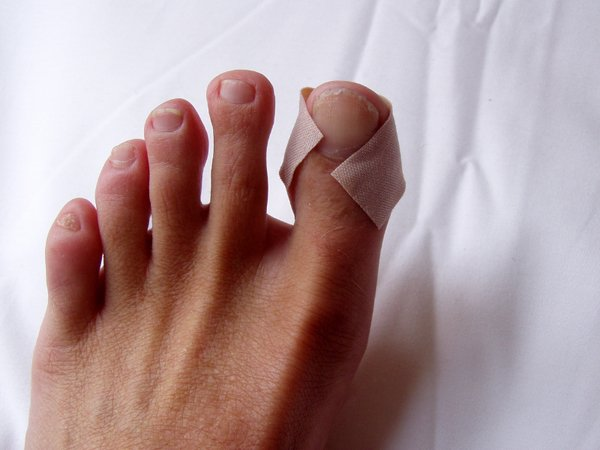 Numbness, or peripheral nerve pain  in the toes is often the first sign of diabetes.